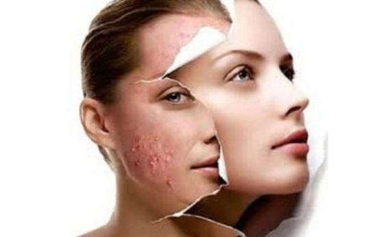 control acne