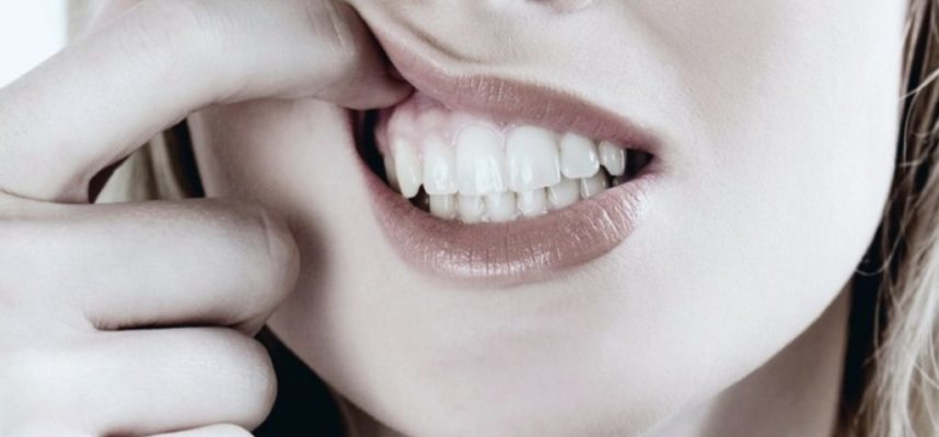 Gum Disease And How It Comes About